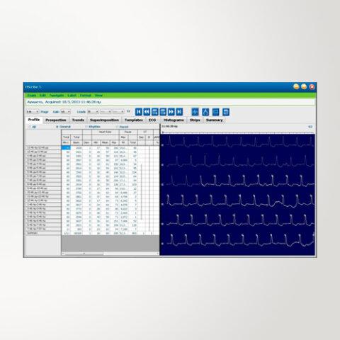 Software de Análise de Holter Digital